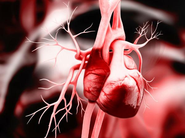 (1477479898)heart-blockage.jpg